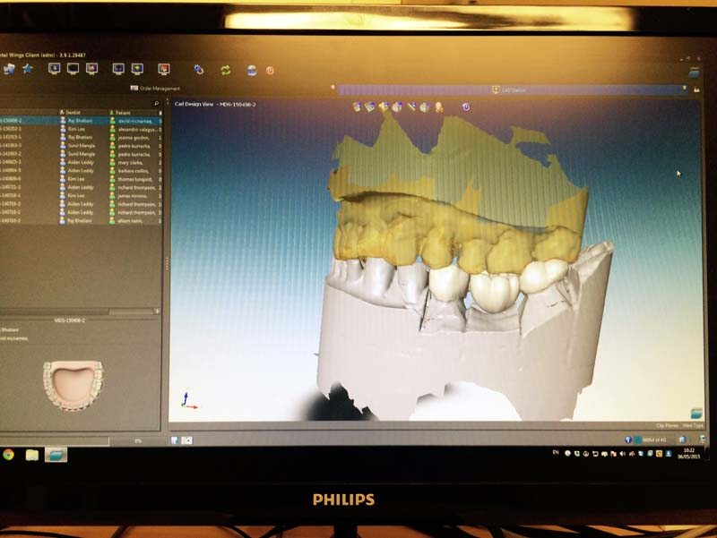 3d dental scanner (2)